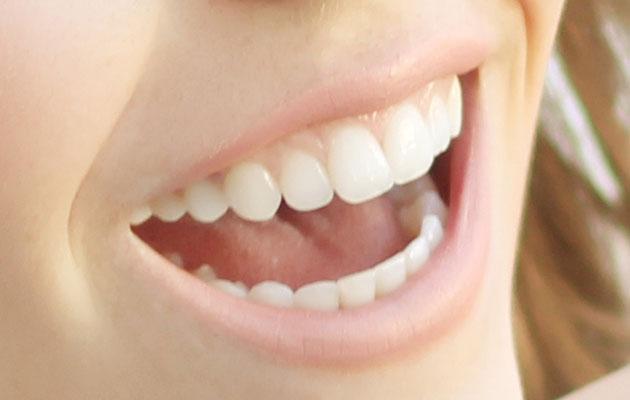 IMG_3761-edit-teeth